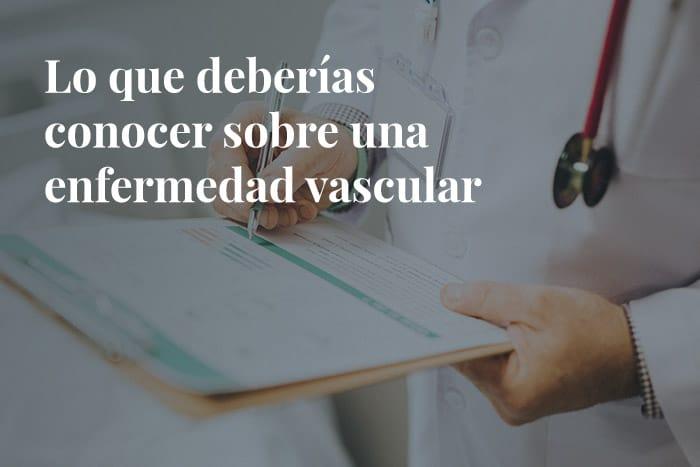 especialistas-en-varices-enfermedad-vascular