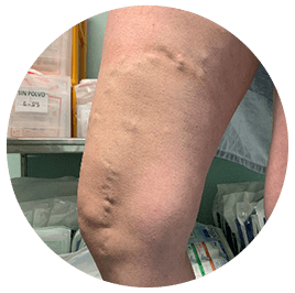 tratamiento-medico-varices-1a