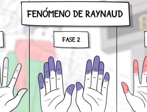 Fenómeno de Raynaud